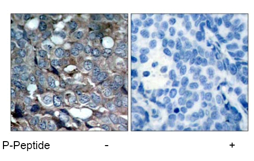Immunohistochemistry (Paraffin-embedded sections) - ASK1 (phospho S83) antibody (ab47304)