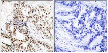 Immunohistochemistry (Paraffin-embedded sections) - BRCA1 (phospho S1423) antibody (ab47325)