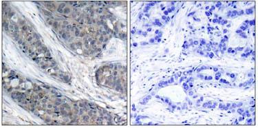 Immunohistochemistry (Paraffin-embedded sections) - IRS1 (phospho S307) antibody (ab47327)