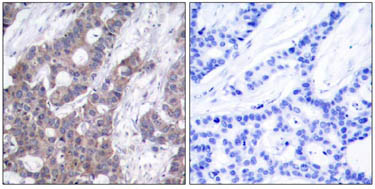 Immunohistochemistry (Formalin/PFA-fixed paraffin-embedded sections) - Anti-Stathmin 1 (phospho S16) antibody (ab47328)