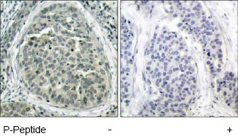 Immunohistochemistry (Paraffin-embedded sections) - beta Catenin (phospho S37) antibody (ab47335)