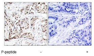 Immunohistochemistry (Paraffin-embedded sections) - JNK1 (phospho T183) antibody (ab47337)
