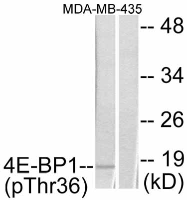 Western blot - eIF4EBP1 (phospho T36) antibody (ab47365)