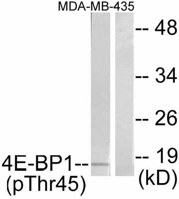 Western blot - eIF4EBP1 (phospho T45) antibody (ab47367)