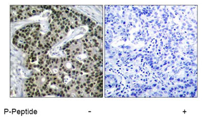 Immunohistochemistry (Paraffin-embedded sections) - HSF1 (phospho S303) antibody (ab47369)
