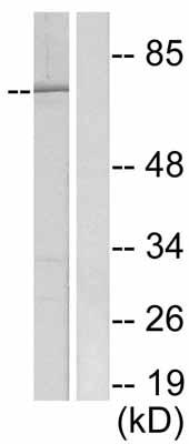 Western blot - S6K (phospho S411) antibody (ab47372)