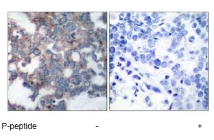 Immunohistochemistry (Paraffin-embedded sections) - S6K (phospho S424) antibody (ab47379)