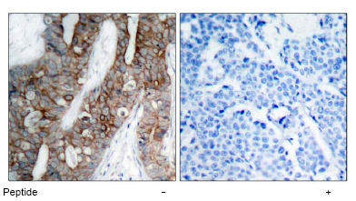 Immunohistochemistry (Paraffin-embedded sections) - Integrin beta 3 antibody (ab47387)