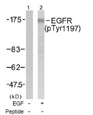 Western blot - EGFR (phospho Y1197) antibody (ab47394)
