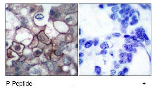 Immunohistochemistry (Paraffin-embedded sections) - EGFR (phospho Y1197) antibody (ab47394)