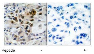 Immunohistochemistry (Paraffin-embedded sections) - FOXO4 antibody (ab47396)