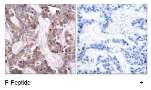 Immunohistochemistry (Paraffin-embedded sections) - Stathmin 1 (phospho S24) antibody (ab47398)