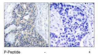Immunohistochemistry (Paraffin-embedded sections) - Stathmin 1 (phospho S37) antibody (ab47399)