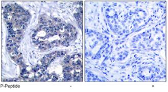 Immunohistochemistry (Paraffin-embedded sections) - IRS1 (phospho S639) antibody (ab47404)