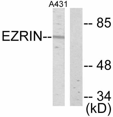 Western blot - Ezrin antibody (ab47418)