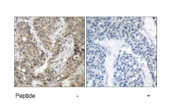 Immunohistochemistry (Paraffin-embedded sections) - beta Catenin antibody (ab47427)