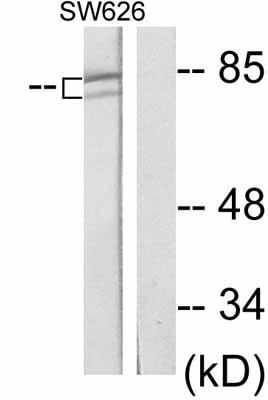 Western blot - beta Catenin antibody (ab47427)