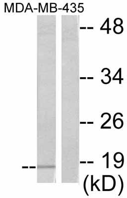 Western blot - eIF4EBP1 antibody (ab47428)