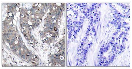 Immunohistochemistry (Paraffin-embedded sections) - Hsp27 antibody (ab47434)