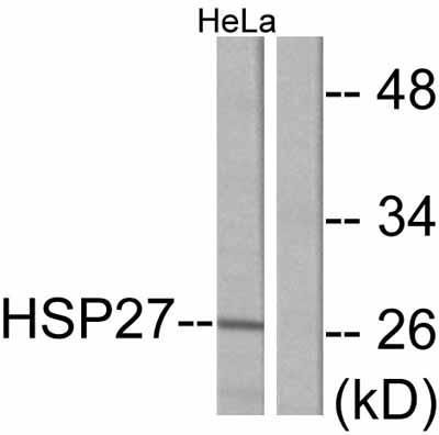 Western blot - Hsp27 antibody (ab47436)