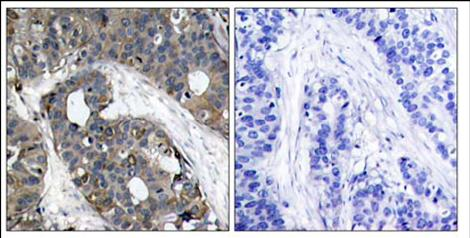 Immunohistochemistry (Paraffin-embedded sections) - Hsp27 antibody (ab47436)