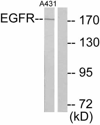 Western blot - EGFR antibody (ab47439)