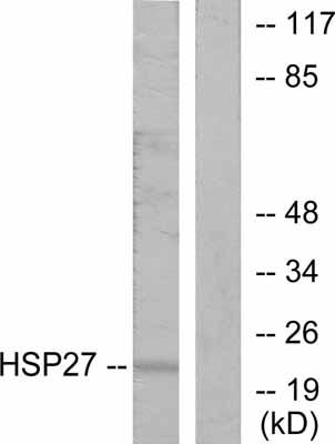 Western blot - Hsp27 antibody (ab47457)