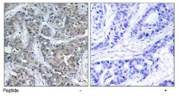 Immunohistochemistry (Paraffin-embedded sections) - Stathmin 1 antibody (ab47464)