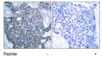 Immunohistochemistry (Paraffin-embedded sections) - Stathmin 1 antibody (ab47468)