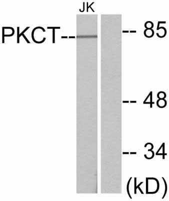 Western blot - PKC theta antibody (ab47471)
