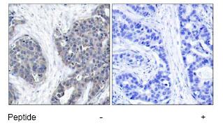Immunohistochemistry (Paraffin-embedded sections) - Stathmin 1 antibody (ab47472)