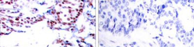 Immunohistochemistry (Paraffin-embedded sections) - ATF2 antibody (ab47476)