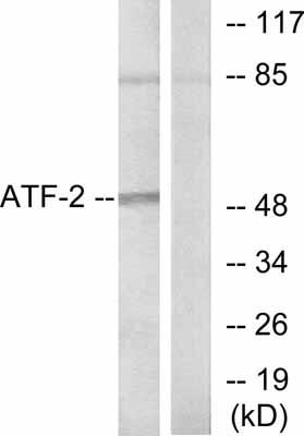 Western blot - ATF2 antibody (ab47476)