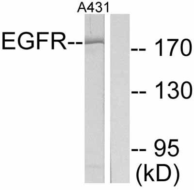 Western blot - EGFR antibody (ab47479)