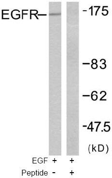 Western blot - EGFR antibody (ab47485)