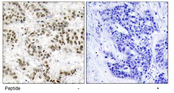 Immunohistochemistry (Paraffin-embedded sections) - JNK1 antibody (ab47486)