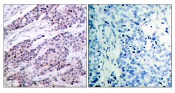 Anti-Bcl-2 antibody (ab47489)