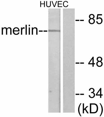 Western blot - NF2 / Merlin antibody (ab47502)