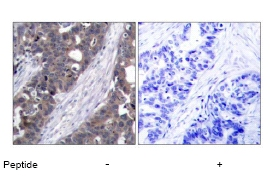 Immunohistochemistry (Paraffin-embedded sections) - P70 S6 Kinase alpha antibody (ab47504)