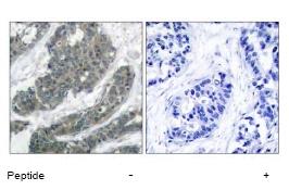 Immunohistochemistry (Paraffin-embedded sections) - DOK1 antibody (ab47506)