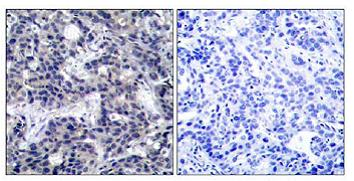 Immunohistochemistry (Paraffin-embedded sections) - PKR antibody (ab47509)