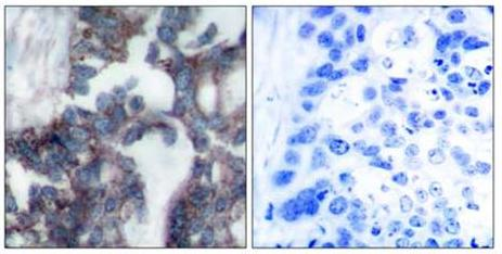 Immunohistochemistry (Paraffin-embedded sections) - P70 S6 Kinase alpha antibody (ab47511)