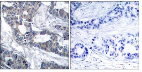 Immunohistochemistry (Paraffin-embedded sections) - MEK1 antibody (ab47514)