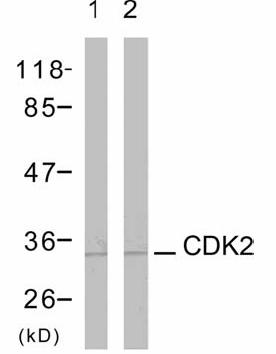 Western blot - Cdk2 antibody (ab47518)