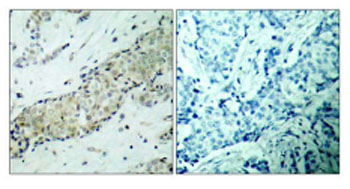 Immunohistochemistry (Paraffin-embedded sections) - HDAC5 antibody (ab47519)