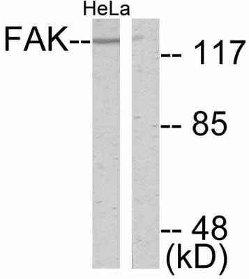 Western blot - FAK antibody (ab47523)