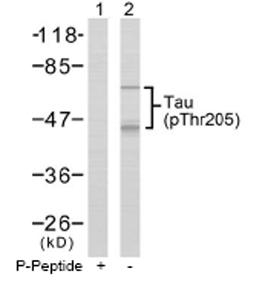 Western blot - Tau (phospho T205) antibody (ab47526)