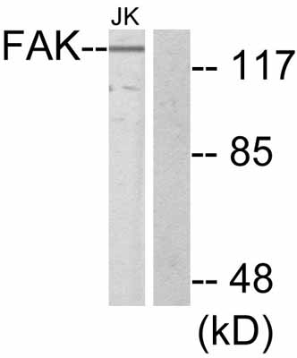 Western blot - FAK antibody (ab47557)