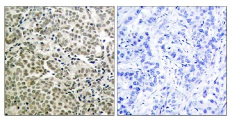 Immunohistochemistry (Paraffin-embedded sections) - JNK1 antibody (ab47561)