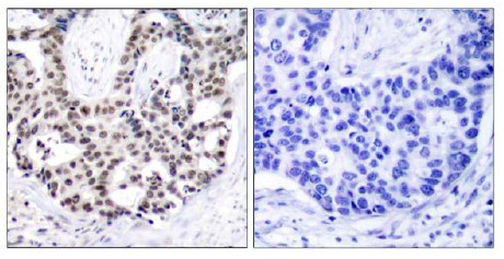 Immunohistochemistry (Paraffin-embedded sections) - Androgen Receptor (phospho S650) antibody (ab47563)